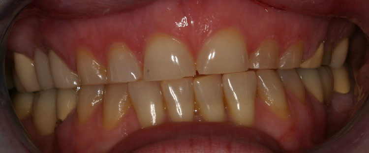 before picture of patient's smile