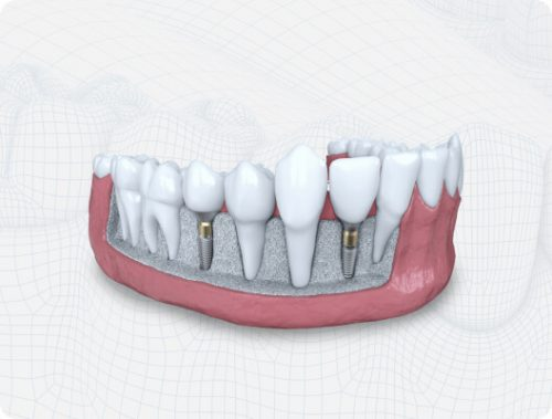 guided dental implants graphic