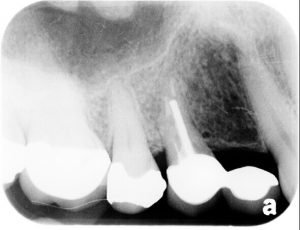 before picture of patient's tooth x-ray