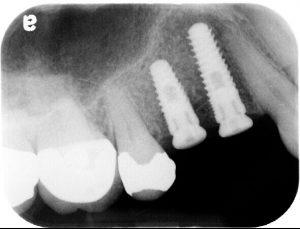 x-ray image of dental implants