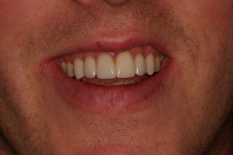after picture of patient's smile